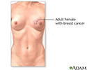 Breast reconstruction - series