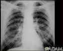 Coal workers pneumoconiosis - stage II